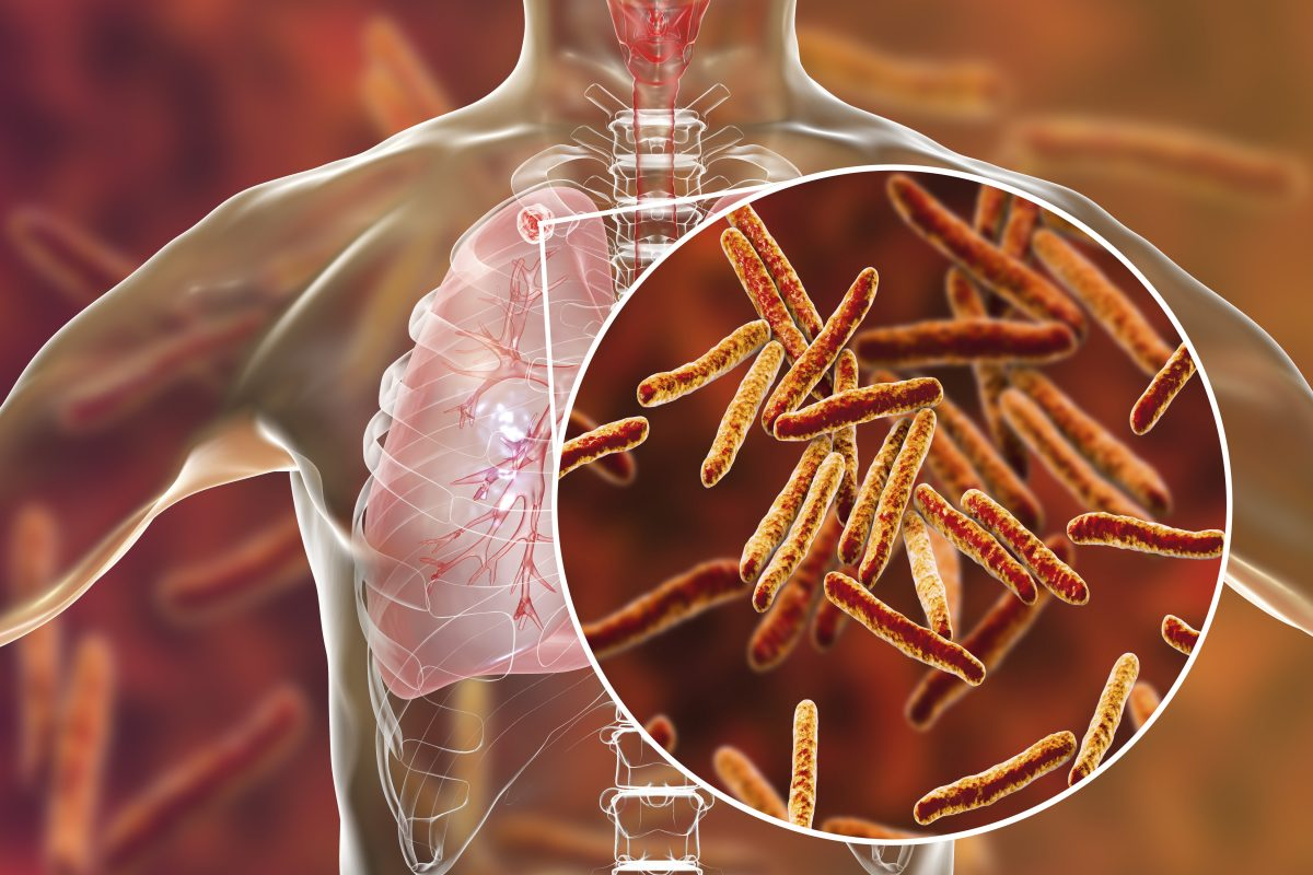Tuberculosis Isn't Over —Not by a Longshot